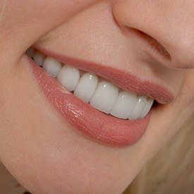 Closeup of flawless smile