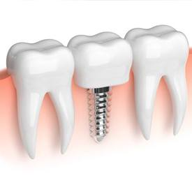 Single dentist