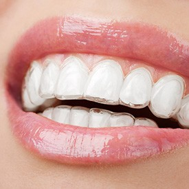 Closeup of teeth with Invisalign trays in place