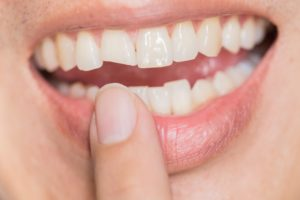 woman is a good candidate for veneers