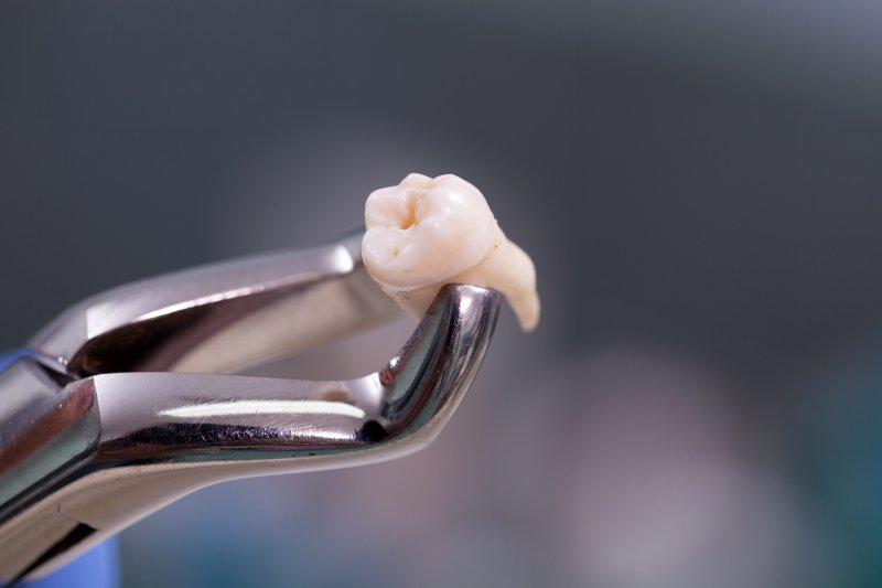 Extracted tooth