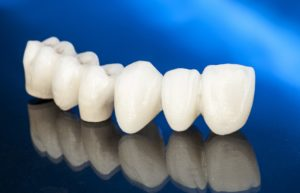 Model of a dental bridge